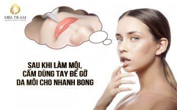 Sau Khi Làm Môi, Cấm Dùng Tay Để Gỡ Da Môi Cho Nhanh Bongaaaaaaaaaaaa