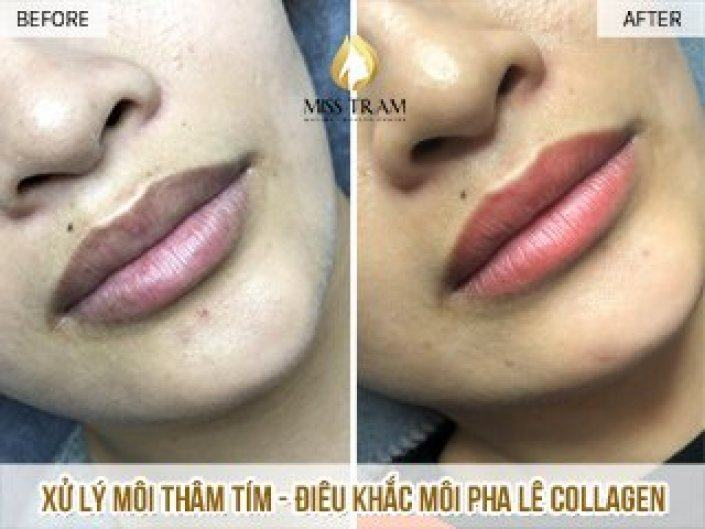 Treatment Of Bruised Lips And Natural Collagen Crystal Lip Sculpture