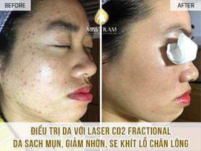 Treat Your Skin Incense with Fractional CO2 Laser Technology