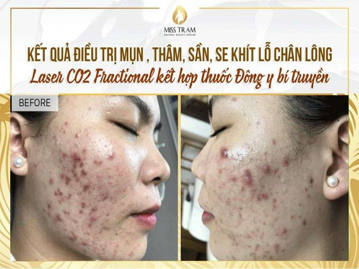 Results of Acne Treatment, Tightening Pores with Fractional CO2 Laser Combining Traditional Medicine
