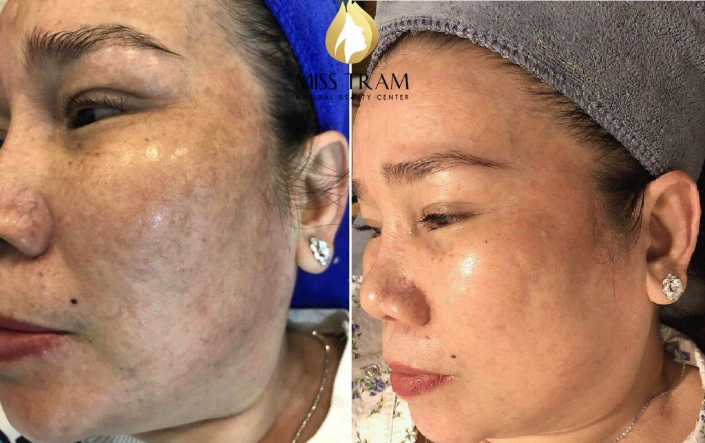 A reputable and quality melasma treatment address in Ho Chi Minh City