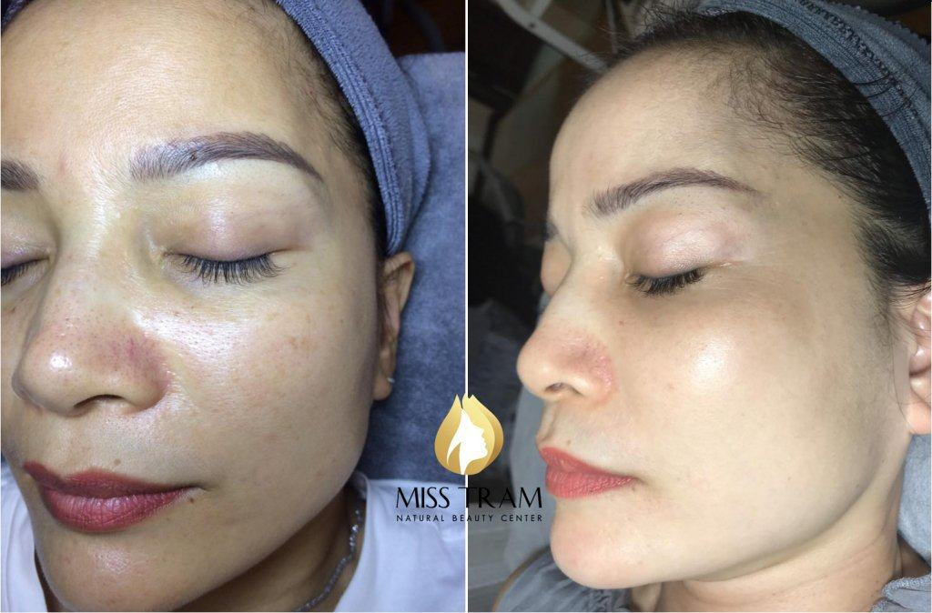 Melasma Treatment Results Before And After At Miss Tram Spa