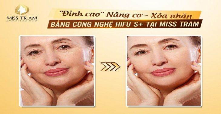 """""""Đỉnh Cao"""" Nâng Cơ – Xóa Nhăn Bằng Công Nghệ Hifu S+"""