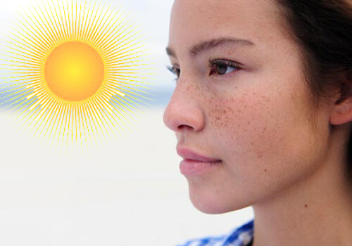 Tiếp xúc trực tiếp nhiều với ánh nắng mặt trời là một trong những nguyên nhân gây đốm mồi.