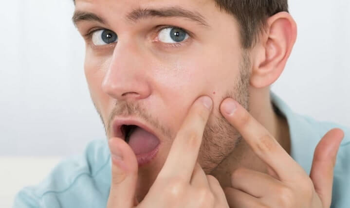 thói quen gây mụn ở nam giới