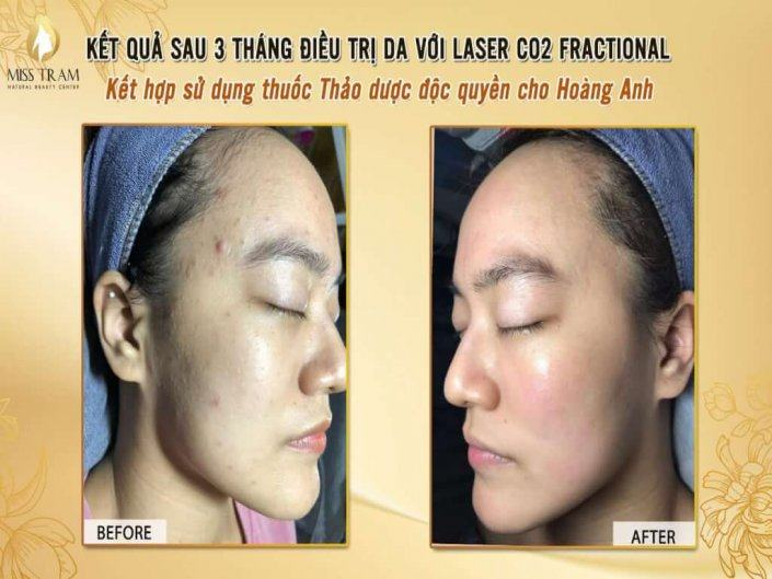 Skin Treatment Results With Fractional CO2 Laser Combining Exclusive Herbs