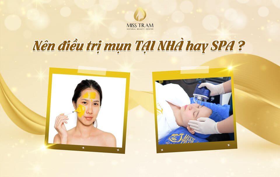 điều trị mụn tại nhà hay spa là hiệu quả nhất