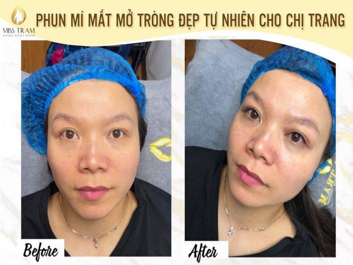 Phun Mí Mắt Mở Tròng Đẹp Tự Nhiên Cho Chị Trang