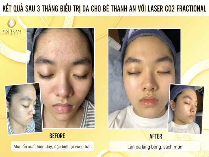 Results After 3 Months of Fractional CO2 Laser Skin Treatment For Women