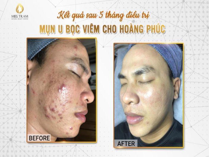 Kết Quả Điều Trị Da Mụn U Bọc Viêm 5 Tháng Cho Nam
