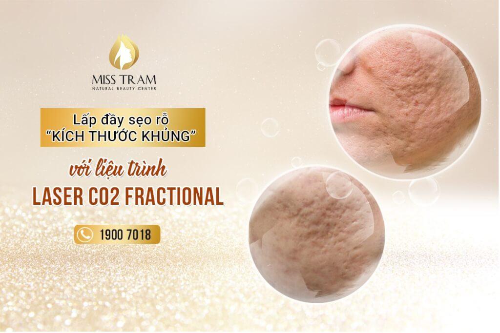 Công nghệ điều trị sẹo rỗ an toàn, hiệu quả với liệu trình laser co2 fractional
