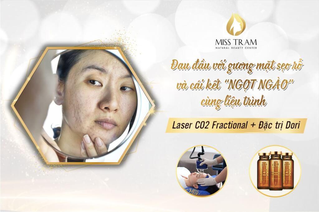Trị sẹo rỗ an toàn với liệu trình laser co2 fractional + đặc trị Dori