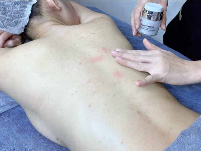chi phí điều trị mụn lưng tại sài gòn