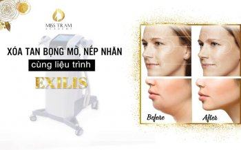 Remove Puffiness, Wrinkles With Exilis Treatment