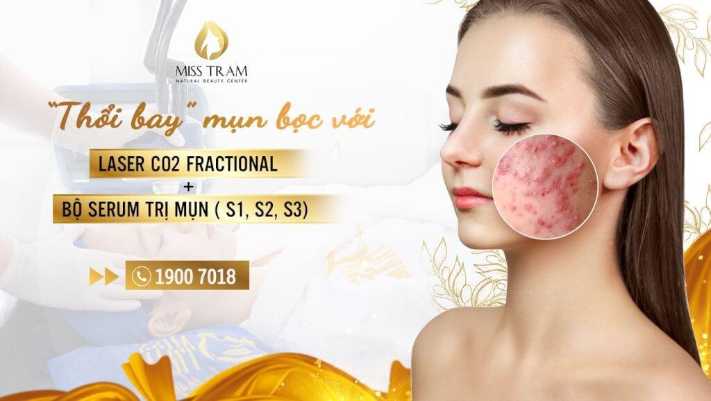 Phương pháp, công nghệ điều trị mụn bọc hiệu quả, an toàn cho da