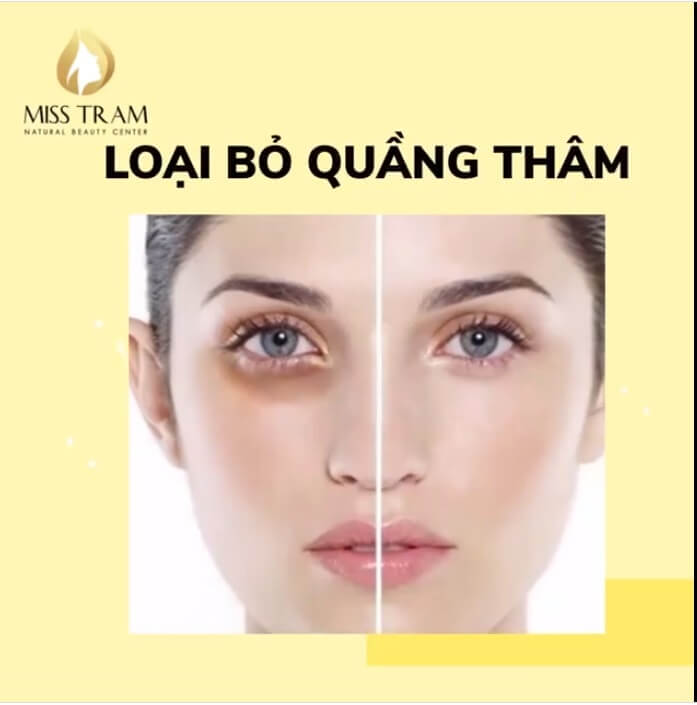 cách loại bỏ quầng thâm mắt hiệu quả