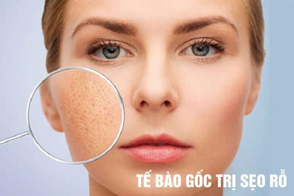 phương pháp trị sẹo rỗ hiệu quả