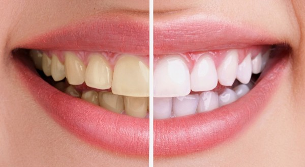 Làm trắng răng xỉn màu