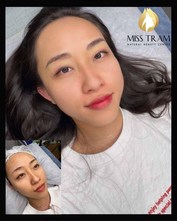 Trước & Sau Kết Quả Chân Mày Hairstroke Đẹp Cho Khách Tại Spa