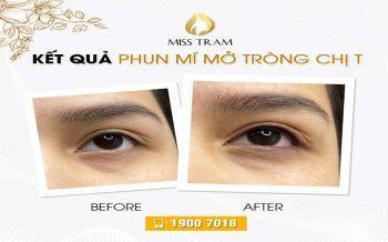 Trước & Sau Phun Mí Mở Tròng Cho Chị T Tại Miss Tram Spa