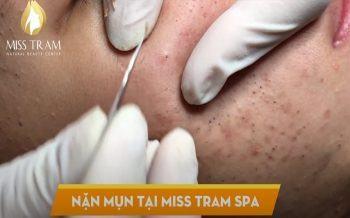 Trải Nghiệm Lấy Nhân Mụn Cho Khách Hàng Tại Miss Tram Spa