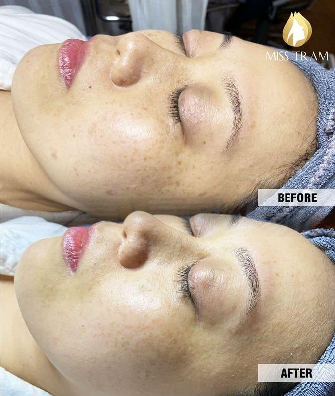 Trước và Sau khi dùng liệu trình Vitamin B5